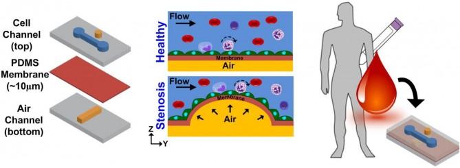 새로 개발된 올갠온어칩은 가운데 분리막 공기층과 유체층으로 나뉘며 공기압을 조절해 혈관내 혈류속도를 다르게 조절할 수 있다. 이를 통해 혈류속도에 따른 동맥경화 가능성을 예측 가능하다. - Nanyang technology University 제공